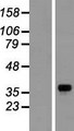 GNB1 Protein - Western validation with an anti-DDK antibody * L: Control HEK293 lysate R: Over-expression lysate