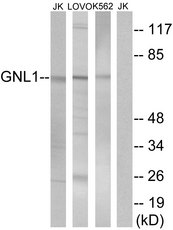 Western blot analysis of lysates from Jurkat, LOVO, and K562 cells, using GNL1 Antibody. The lane on the right is blocked with the synthesized peptide.