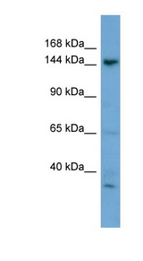 GNPTA / ICD Antibody - GNPTAB antibody Western blot of HepG2 cell lysate. This image was taken for the unconjugated form of this product. Other forms have not been tested.