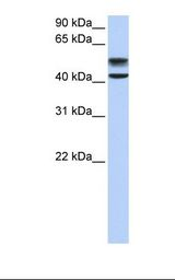 GNS Antibody - Fetal liver lysate. Antibody concentration: 1.0 ug/ml. Gel concentration: 12%.  This image was taken for the unconjugated form of this product. Other forms have not been tested.