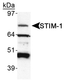 Detection of STIM-1 in HeLa WCE.  This image was taken for the unconjugated form of this product. Other forms have not been tested.