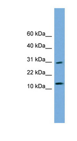 GOLGA7 Antibody - GOLGA7 antibody Western blot of Transfected 293T cell lysate. This image was taken for the unconjugated form of this product. Other forms have not been tested.