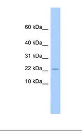 GOLGA7B Antibody - 721_B cell lysate. Antibody concentration: 1.0 ug/ml. Gel concentration: 10-20%.  This image was taken for the unconjugated form of this product. Other forms have not been tested.