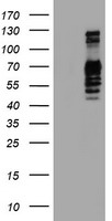 GOLM1 / GP73 / GOLPH2 Antibody - HEK293T cells were transfected with the pCMV6-ENTRY control (Left lane) or pCMV6-ENTRY GOLM1 (Right lane) cDNA for 48 hrs and lysed. Equivalent amounts of cell lysates (5 ug per lane) were separated by SDS-PAGE and immunoblotted with anti-GOLM1.