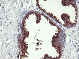 GOLM1 / GP73 / GOLPH2 Antibody - IHC of paraffin-embedded Human prostate tissue using anti-GOLM1 mouse monoclonal antibody.