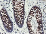 IHC of paraffin-embedded Human colon tissue using anti-GOLM1 mouse monoclonal antibody.