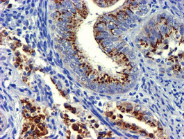 IHC of paraffin-embedded Adenocarcinoma of Human endometrium tissue using anti-GOLM1 mouse monoclonal antibody.