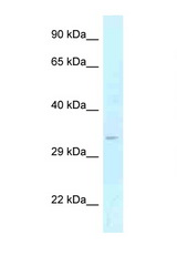 GOLPH3 antibody LS-C145732 Western blot of Fetal Liver lysate. Antibody concentration 1 ug/ml.  This image was taken for the unconjugated form of this product. Other forms have not been tested.