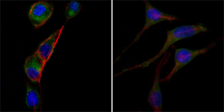 Immunofluorescence of PC-3 (left) and SK-BR-3 (right) cells using anti-GOT2 monoclonal antibody (green). Red: Actin filaments have been labeled with DY-554 phalloidin. Blue: DRAQ5 fluorescent DNA dye.
