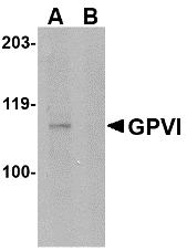Western blot of GPVI in mouse brain lysate with GPVI antibody at 1 ug/ml in either the absence or (B) the presence of blocking peptide.