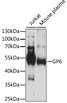 GP6 / GPVI Antibody - Western blot analysis of extracts of various cell lines, using GP6 antibody at 1:1000 dilution. The secondary antibody used was an HRP Goat Anti-Rabbit IgG (H+L) at 1:10000 dilution. Lysates were loaded 25ug per lane and 3% nonfat dry milk in TBST was used for blocking. An ECL Kit was used for detection and the exposure time was 30s.