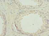 Immunohistochemistry of paraffin-embedded human prostate cancer using PYGB Antibody at dilution of 1:100