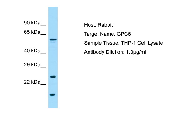 GPC6 / Glypican 6 Antibody -  This image was taken for the unconjugated form of this product. Other forms have not been tested.