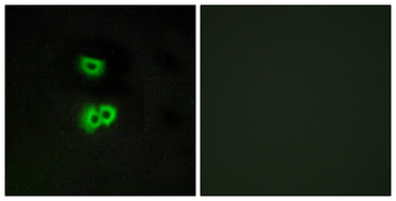 Immunofluorescence analysis of A549 cells, using GPR101 Antibody. The picture on the right is blocked with the synthesized peptide.