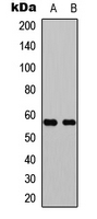 Western blot analysis of GPR101 expression in Jurkat (A); rat muscle (B) whole cell lysates.