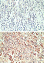 GPCRW / GPR18 Antibody - IHC ofGPR18 in paraffin-embedded formalin-fixed human breast tumor tissue using an isotype control (top) and Peptide-affinity Purified Polyclonal Antibody to GPR18 (bottom) at 5 ug/ml.