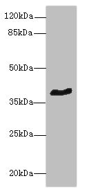GPCRW / GPR18 Antibody - Western blot All lanes: GPR18 antibody at 8µg/ml + Mouse brain tissue Secondary Goat polyclonal to rabbit IgG at 1/10000 dilution Predicted band size: 38 kDa Observed band size: 38 kDa