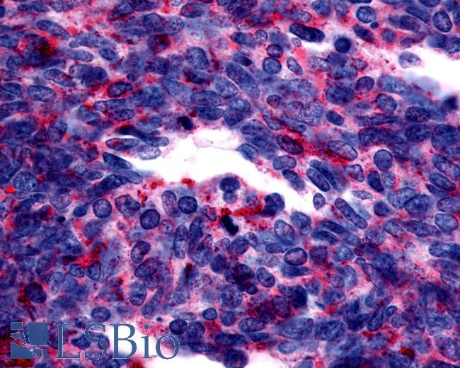 Anti-GPER1 / GPR30 antibody IHC of human Lung, Small Cell Carcinoma. Immunohistochemistry of formalin-fixed, paraffin-embedded tissue after heat-induced antigen retrieval.