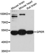 GPER1 / GPR30 Antibody - Western blot analysis of extracts of various cell lines, using GPER1 antibody at 1:1000 dilution. The secondary antibody used was an HRP Goat Anti-Rabbit IgG (H+L) at 1:10000 dilution. Lysates were loaded 25ug per lane and 3% nonfat dry milk in TBST was used for blocking. An ECL Kit was used for detection and the exposure time was 90s.