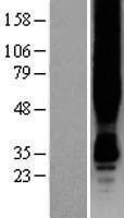 GPER1 / GPR30 Protein - Western validation with an anti-DDK antibody * L: Control HEK293 lysate R: Over-expression lysate