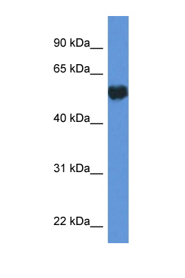 GPI antibody LS-C135916 Western blot of HepG2 Cell lysate. Antibody concentration 1 ug/ml.  This image was taken for the unconjugated form of this product. Other forms have not been tested.