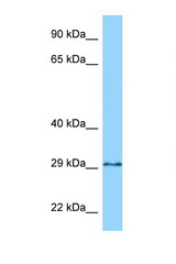 GPN3 antibody Western blot of 435S Cell lysate. Antibody concentration 1 ug/ml.  This image was taken for the unconjugated form of this product. Other forms have not been tested.