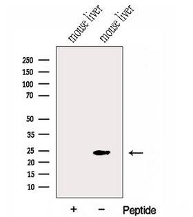 Gpnat1 / GNPNAT1 Antibody - Western blot analysis of extracts of mouse liver tissue using GNPNAT1 antibody. The lane on the left was treated with blocking peptide.