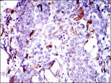 GPNMB / Osteoactivin Antibody - IHC of paraffin-embedded breast cancer tissues using GPNMB mouse monoclonal antibody with DAB staining.