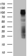 GPNMB / Osteoactivin Antibody - HEK293T cells were transfected with the pCMV6-ENTRY control (Left lane) or pCMV6-ENTRY GPNMB (Right lane) cDNA for 48 hrs and lysed. Equivalent amounts of cell lysates (5 ug per lane) were separated by SDS-PAGE and immunoblotted with anti-GPNMB (1:2000).