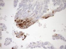 GPNMB / Osteoactivin Antibody - Immunohistochemical staining of paraffin-embedded Adenocarcinoma of Human ovary tissue using anti-GPNMB mouse monoclonal antibody. (Heat-induced epitope retrieval by 1mM EDTA in 10mM Tris buffer. (pH8.5) at 120°C for 3 min. (1:150)