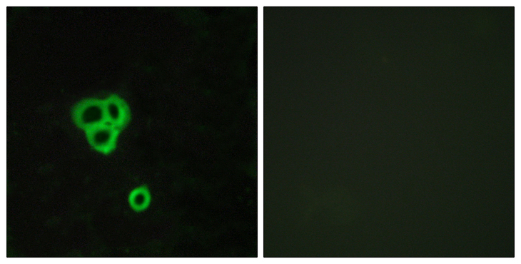 Immunofluorescence analysis of MCF7 cells, using GPR119 Antibody. The picture on the right is blocked with the synthesized peptide.