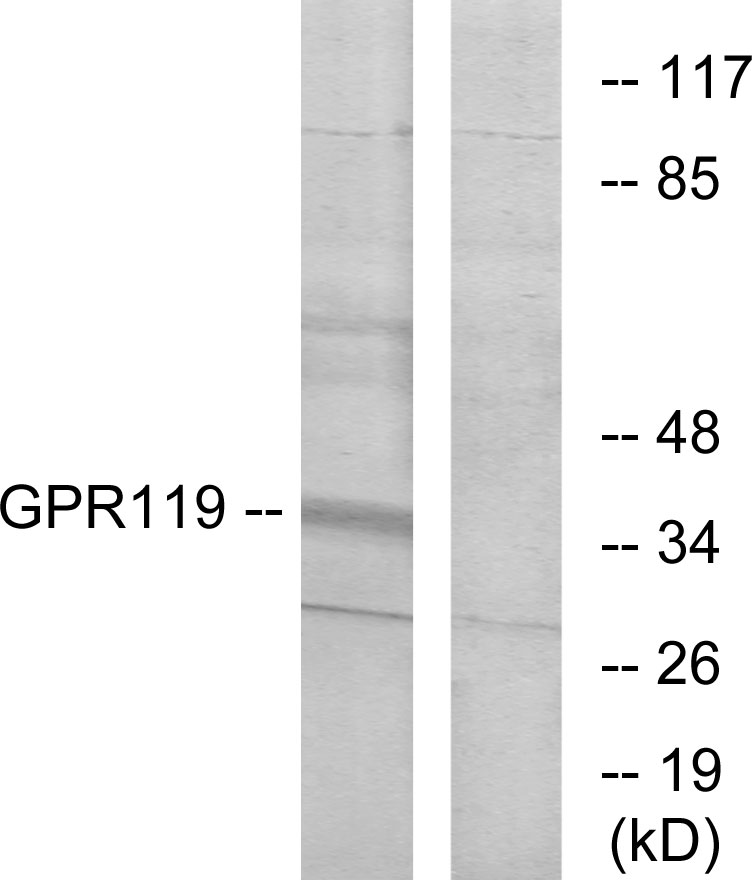 Western blot analysis of lysates from K562 cells, using GPR119 Antibody. The lane on the right is blocked with the synthesized peptide.