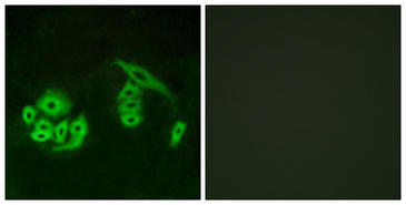 Immunofluorescence analysis of A549 cells, using GPR12 Antibody. The picture on the right is blocked with the synthesized peptide.