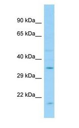 GPR12 Antibody - GPR12 antibody Western Blot of Fetal Liver.  This image was taken for the unconjugated form of this product. Other forms have not been tested.