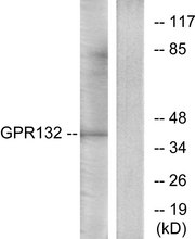 Western blot analysis of lysates from Jurkat cells, using GPR132 Antibody. The lane on the right is blocked with the synthesized peptide.