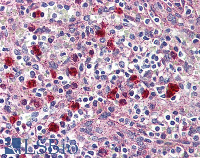 Anti-GPR132 / G2A antibody IHC of human spleen, red pulp. Immunohistochemistry of formalin-fixed, paraffin-embedded tissue after heat-induced antigen retrieval.