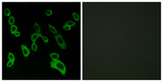 Immunofluorescence analysis of LOVO cells, using GPR139 Antibody. The picture on the right is blocked with the synthesized peptide.