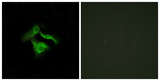 Immunofluorescence analysis of HeLa cells, using GPR149 Antibody. The picture on the right is blocked with the synthesized peptide.