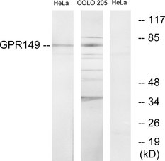 Western blot analysis of lysates from HeLa and COLO205 cells, using GPR149 Antibody. The lane on the right is blocked with the synthesized peptide.