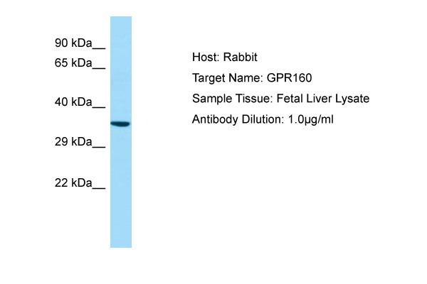 GPR160 Antibody -  This image was taken for the unconjugated form of this product. Other forms have not been tested.