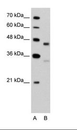 GPR161 Antibody - A: Marker, B: Jurkat Cell Lysate.  This image was taken for the unconjugated form of this product. Other forms have not been tested.