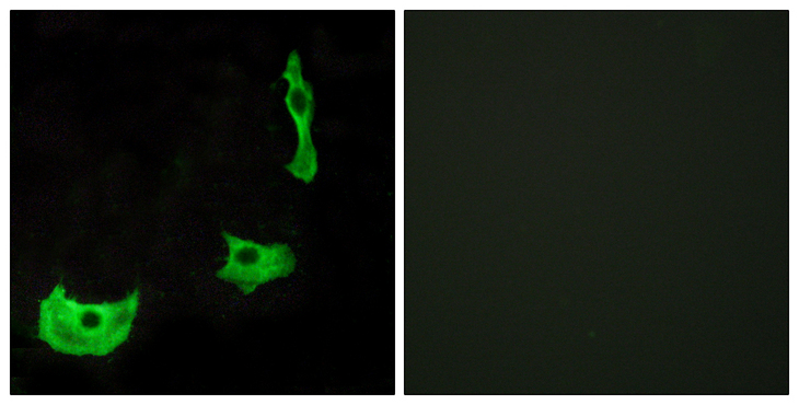 GPR17 Antibody - Immunofluorescence analysis of HeLa cells, using GPR17 Antibody. The picture on the right is blocked with the synthesized peptide.