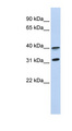 GPR27 antibody Western blot of MCF7 cell lysate. This image was taken for the unconjugated form of this product. Other forms have not been tested.
