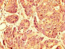 GPR32 Antibody - Immunohistochemistry image at a dilution of 1:500 and staining in paraffin-embedded human gastric cancer performed on a Leica BondTM system. After dewaxing and hydration, antigen retrieval was mediated by high pressure in a citrate buffer (pH 6.0) . Section was blocked with 10% normal goat serum 30min at RT. Then primary antibody (1% BSA) was incubated at 4 °C overnight. The primary is detected by a biotinylated secondary antibody and visualized using an HRP conjugated SP system.