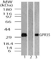 GPR35 Antibody - Western blot of ug Protein-Coupled Receptor GPR35 in MCF7 cell lysate in the 1) absence and 2) presence of immunizing peptide 3) RAW using Polyclonal Antibody to G Protein-Coupled Receptor GPR35 at 0.5 ug/ml and 1.0 ug/ml, respectively.