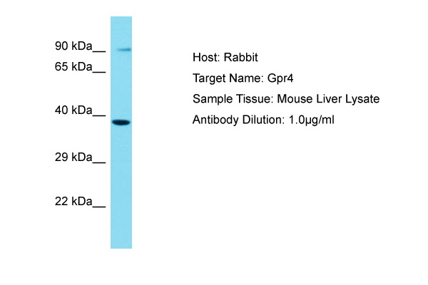 GPR4 Antibody -  This image was taken for the unconjugated form of this product. Other forms have not been tested.