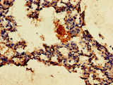 Immunohistochemistry of paraffin-embedded human lung tissue at dilution of 1:100