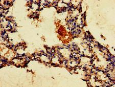 GPR4 Antibody - Immunohistochemistry of paraffin-embedded human lung tissue at dilution of 1:100
