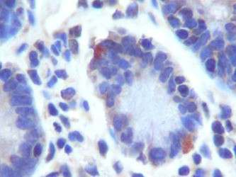 GPR49 / LGR5 Antibody - GPR49 Antibody (LGR5) - IHC of human small intestine using GPR49.  This image was taken for the unconjugated form of this product. Other forms have not been tested.