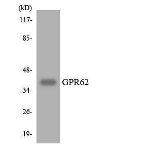 Western blot analysis of the lysates from Jurkat cells using GPR62 antibody.